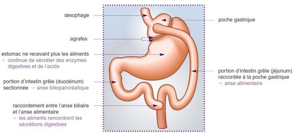 chirurgie du ventre qui tombe