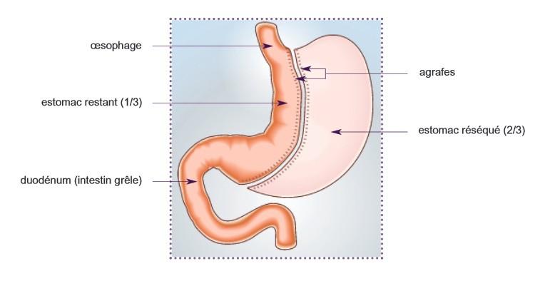 informations sur la chirurgie bariatrique association vasf